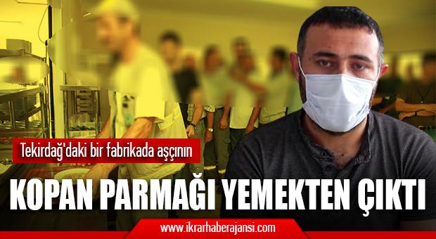Tekirdağ'daki bir fabrikada çalışan işçinin yemeğinden, kopmuş parmak çıktı