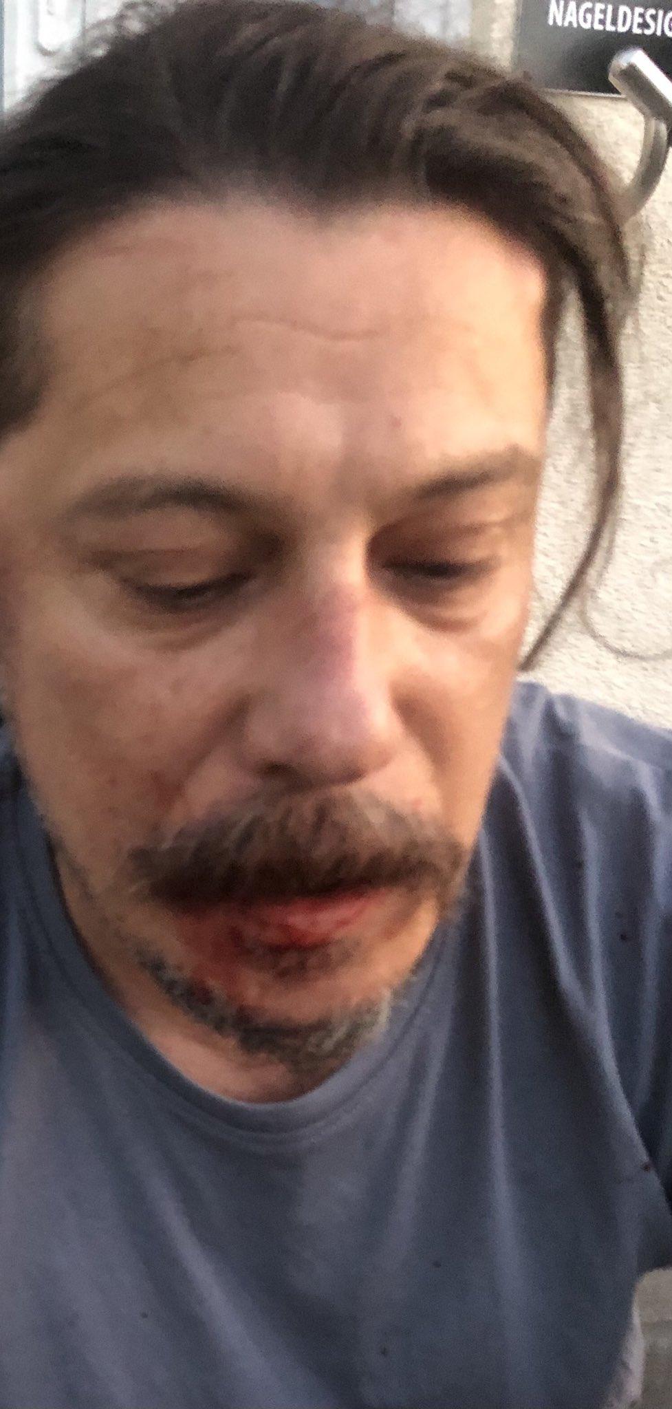 Gazeteci Erk Acarer'den saldırı hakkında açıklama
